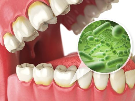 closeup image on teeth with germs
