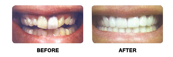 Before and after picture of teeth
