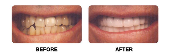 Before and after picture ( teeth )