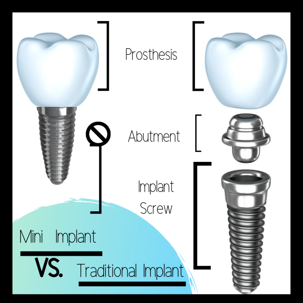 chart showing the differences between a mini/traditional dental implant