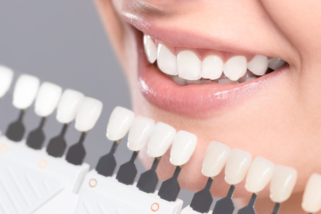 Woman smiling with a shade guide for whitening