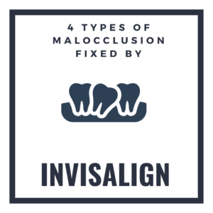 4 Types of Malocclusion Fixed by Invisalign